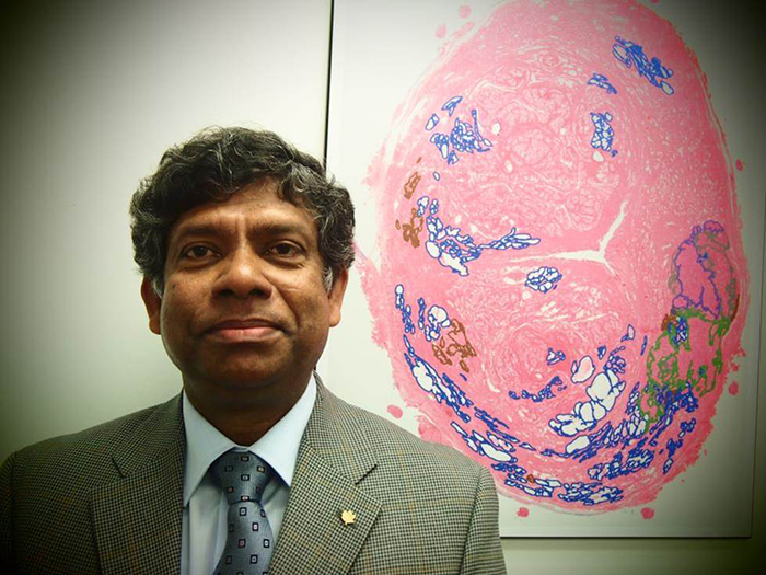 CIMTEC customer, Dr. Nathan Yoganathan, President & CSO, KalGene Pharmaceuticals