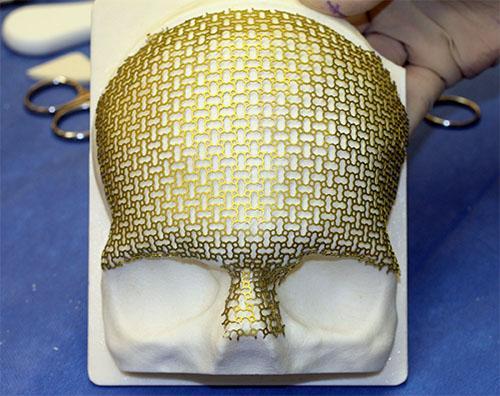 Custom titanium mesh implant by Calavera Surgical Design