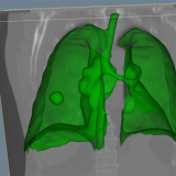 CIMTEC developed 3D lung tumour segmentation software