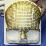Custom titanium mesh implant by Calavera Surgical Design